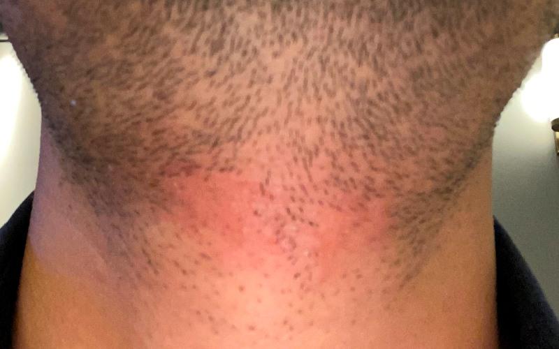 メンズTBCのヒゲ脱毛の施術後の様子_赤くなっているが確実に150本分が無くなっているのが分かる_800