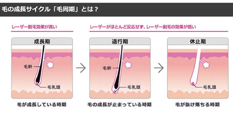 毛の成長サイクル「毛周期」の3つのフェーズ「成長期」「後退期」「休止期」