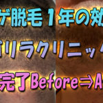 ヒゲレーザー脱毛1年の効果-ゴリラクリニック6回コース完了のBefore⇒After写真比較