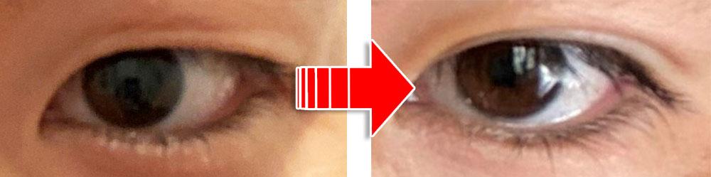 二重整形の前後の写真