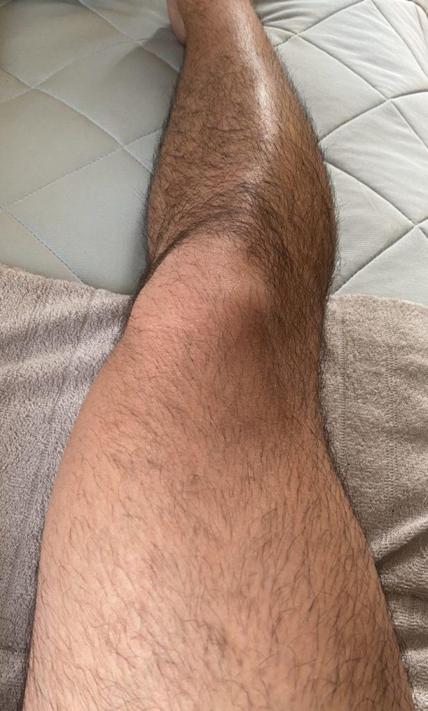 剃毛前の足の毛の状態グロ注意-617x1024