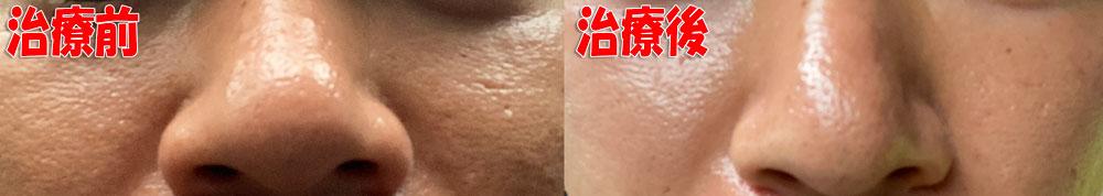 毛穴開き・黒ずみ治療の前後の肌の状態の写真撮影