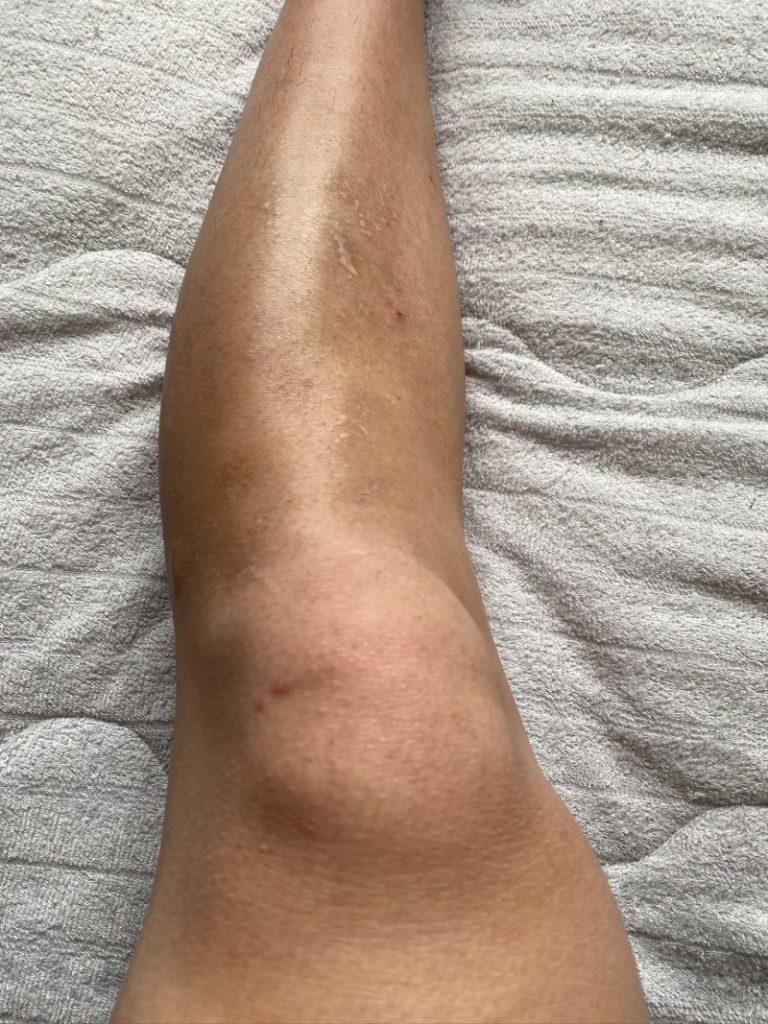 3時間に及ぶ剃毛後の足の毛の状態-768x1024