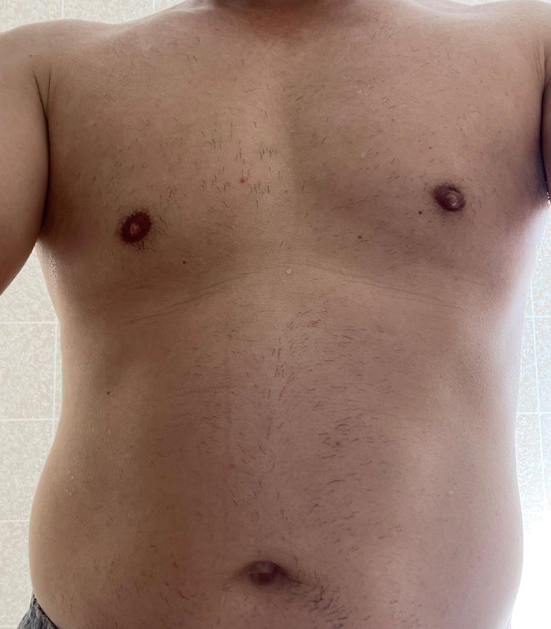 ★全身脱毛から2か月経過後の胸と腹の毛の生え状態_2021年6月上旬時点